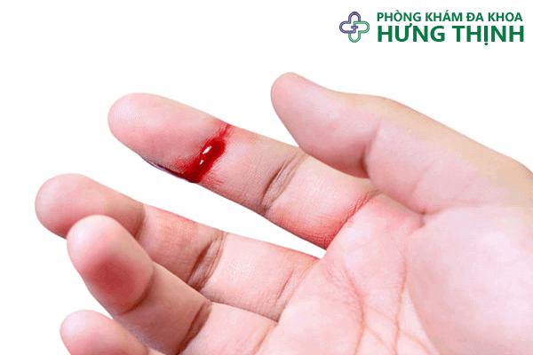 Nguyên nhân gây bệnh giang mai qua đường máu