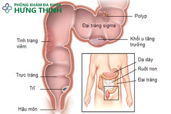 Tổng quan về bệnh u bướu đại tràng