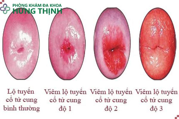 Các biểu hiện thường gặp viêm lộ tuyến cổ tử cung