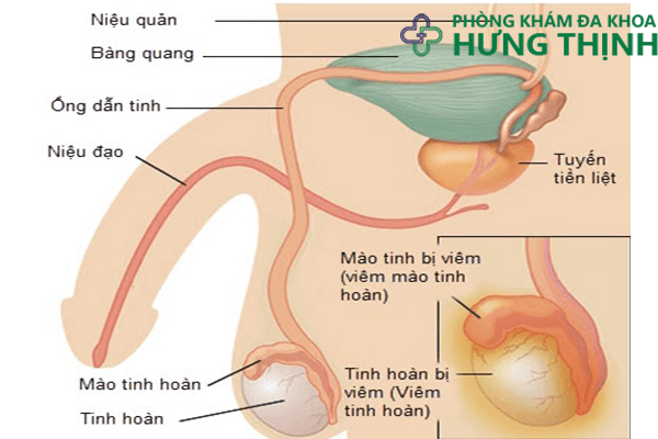 Triệu chứng phổ biến của bệnh viêm tinh hoàn