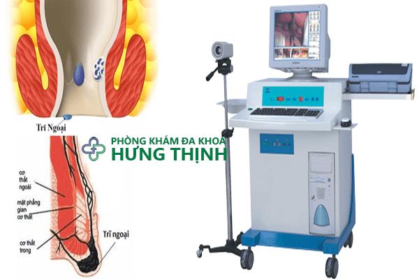 Phương pháp HCPT trong điều trị trĩ ngoại