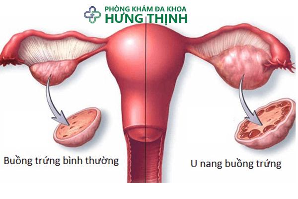 Cách chữa u nang buồng trứng trái phải