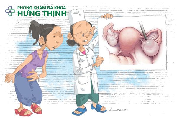 Cách chữa u nang buồng trứng hiệu quả