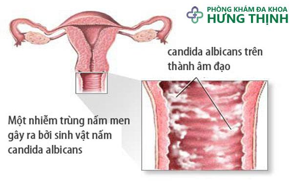 Điều trị viêm âm đạo - Phòng khám đa khoa Hưng Thịnh